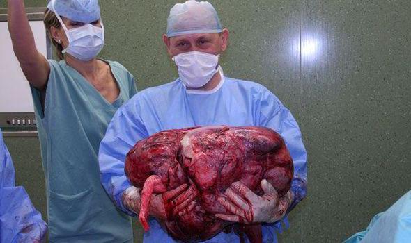 Lekarze Spędzili Siedem Godzin Aby Usunąć Ogromnego Guza Rakowego